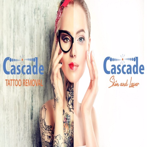 Cascade Tattoo Removal